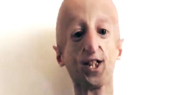 22 latek wygląda jak dziadek - choruje na progerie