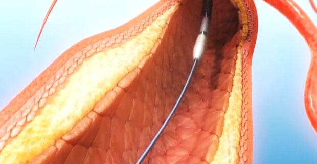 Balonikowanie i zakładanie stentu przeciw miażdżycy - animacja