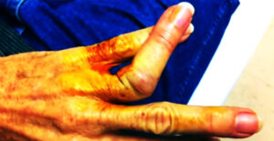 Nastawianie palca