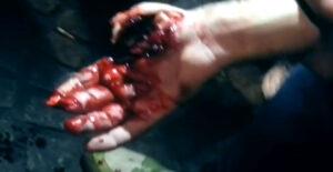 Urwane palce po fajerwerkach